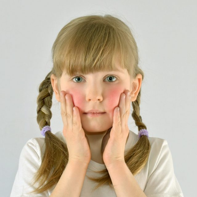 Local Clinical Trail for Pediatric Eczema