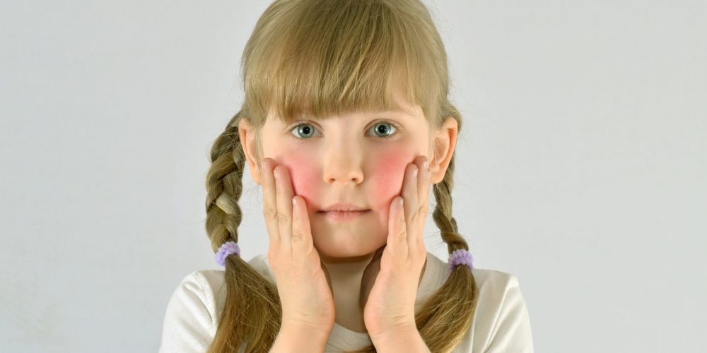 Local Clinical Trial for Pediatric Eczema
